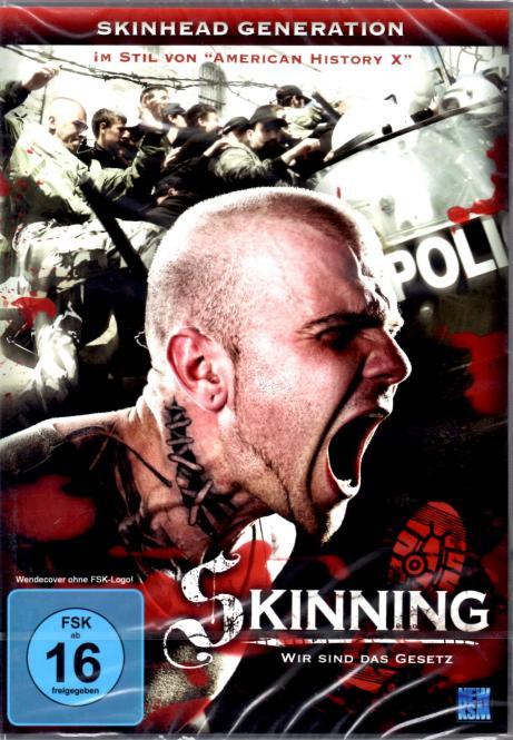 Skinning - Wir Sind Das Gesetz